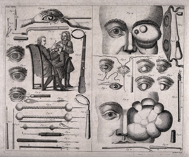 A double sheet showing various ophthalmology instruments ey Wellcome V0016255 660