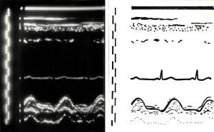 ryc10 ultrasonokardiogram Xmini